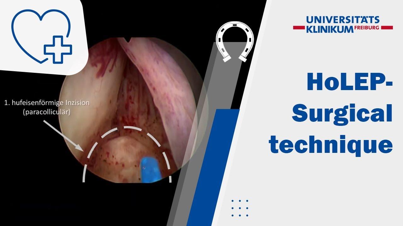 intervento prostatico con laser therapy