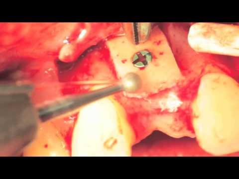 TBF - Lamelle cortico-spongieuse PHOENIX en apposition (Dr Stéphan Duffort)