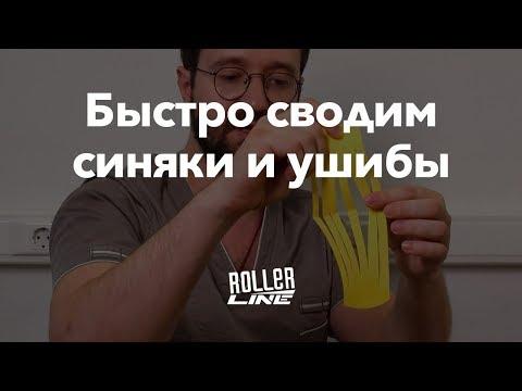 Как быстро избавиться от синяков | Школа роллеров RollerLine
