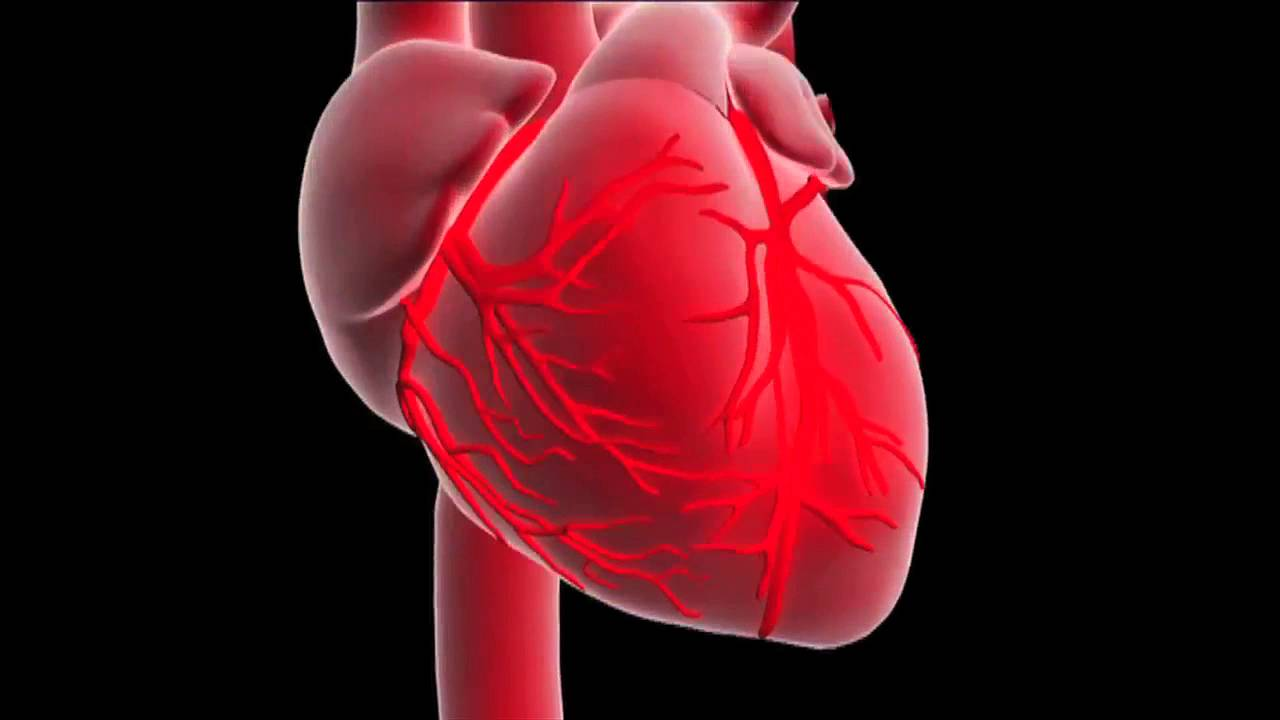 What is a myocardial infarction or heart attack ? - YouTube