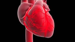 What Is A Myocardial Infarction Or Heart Attack ?