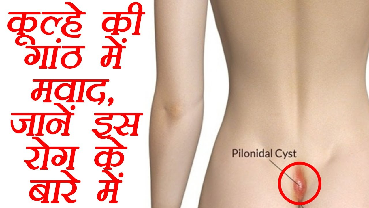 pilonidal cyst pain medication