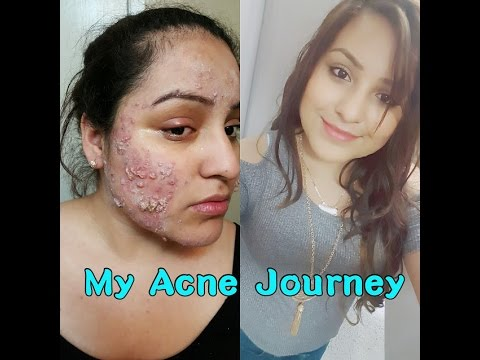 hqdefault - Does Acne Get Worse Before Better Accutane