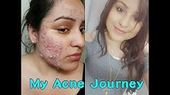 hqdefault - Photos Of Adult Acne