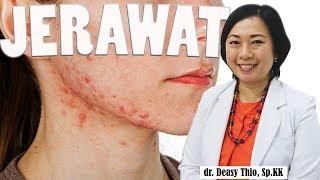 Gambar cover Jerawat - Penyebab - Cara Menghillangkan & Pencegahan : dr. Deasy Thio, Sp.KK