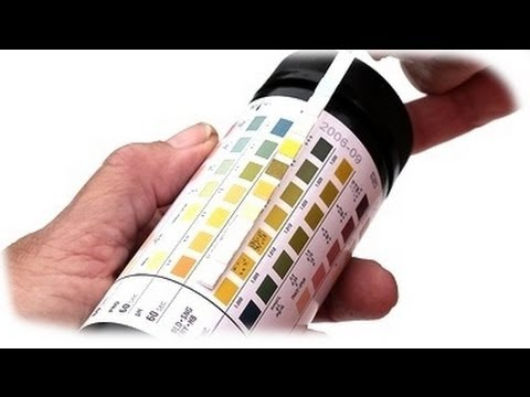 urinalysis - youtube, Skeleton
