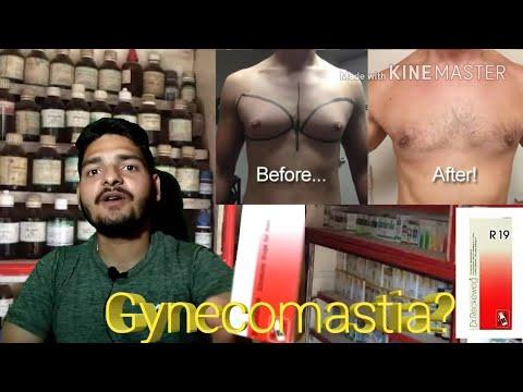 What is Gynecomastia?| Gyneocomestia full Homeopathic treatment| जिनेयोकॉमेस्टिया इलाज।Gyneocomestia