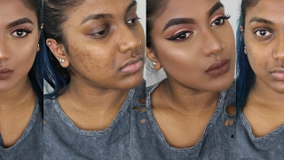 FLAWLESS FOUNDATION ROUTINE FOR OILY ACNEIC SKIN | COVER ACNE SCARS & KEEP FACE MATTE ALL DAY