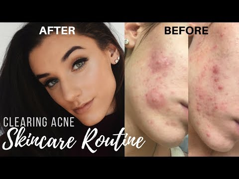 Clearing Up Acne   My Skin Care Routine    KelseyG