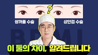 쌍꺼풀수술과 상안검수술, 무엇이 다른가요? 눈성형잘하는…