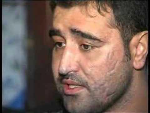 Gazi Jandarma Uzman Çavuş Yılmaz Yiğit