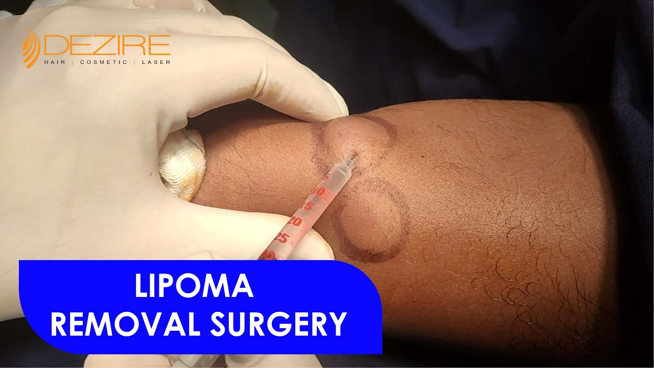 Download Scarless Multiple Hand Lipoma Removal Surgery by Dr. Prashant