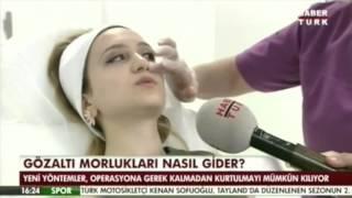 Göz Altı Morluğu Tedavisi Habertürk