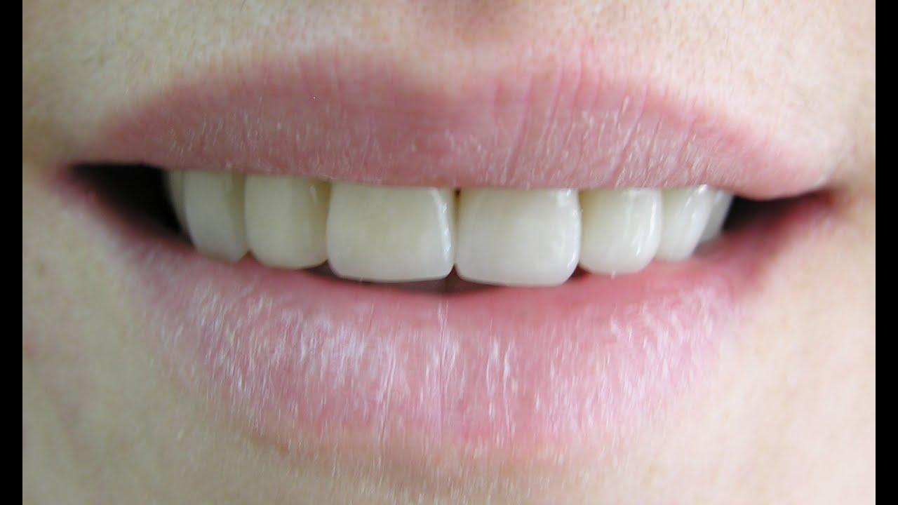 Dental Anatomy Maxillary Central Incisor Carving Youtube