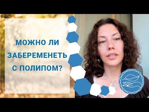 ПОЛИП. Удаление полипа: За и Против. Можно ли забеременеть с полипом? Наталья Петрухина