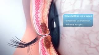 Gland atrophy in MGD