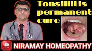 Tonsillitis Treatment -best homeopathic medicine | sore throat explain in detail