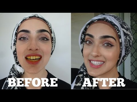 Thumbnail: How To WHITEN Yellow Teeth NATURALLY & INSTANTLY AT HOME in 2 MINS | 100% Effective | OIL PULLING