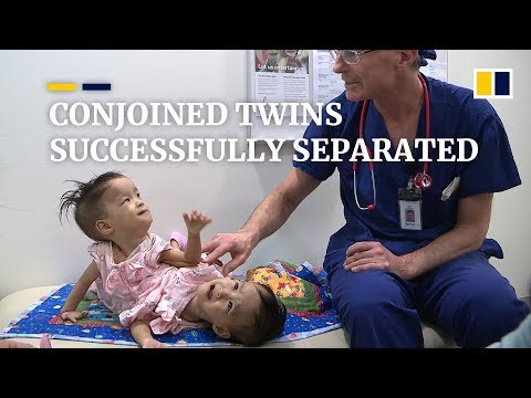 Conjoined Bhutanese twins successfully separated