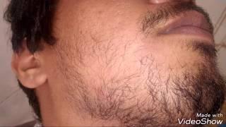 free mp3 songs download - Minoxidil for beard growth week 1