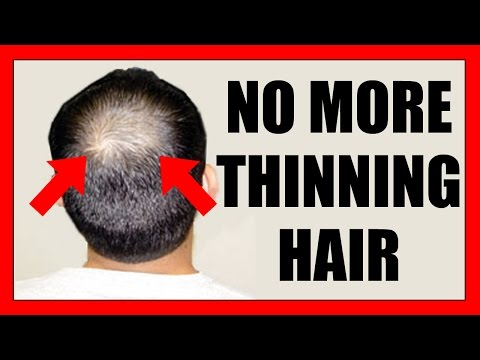 Gofybr - Get Your Hair Back In Seconds | Instant Hair Loss fibers