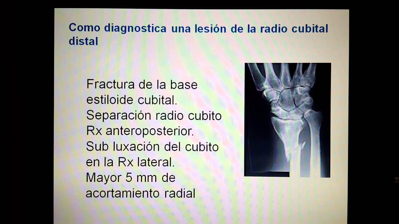 Fracturas del radio y cubito antebrazo,dr.Ugarte - YouTube