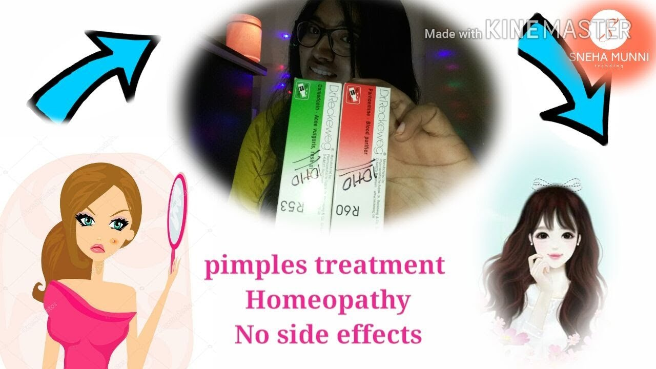 How to cure pimples/zits? Dr Reckeweg medicine R53&R60 ( Homeopathy, no  side effects)