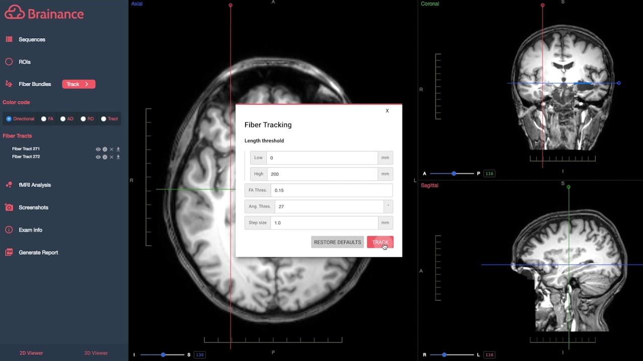Advantis Medical Imaging | Cloud Neuroimaging Software