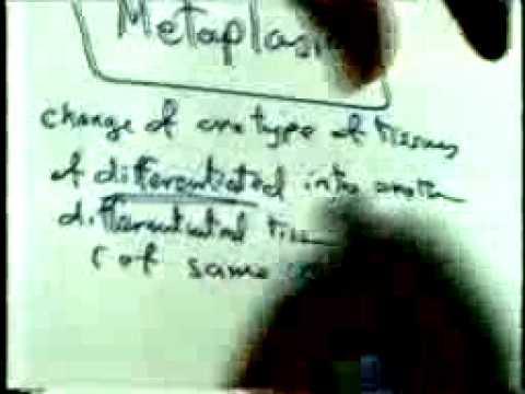 disturbance of growth :atrophy, hypertrophy,metaplasia,,,,,,DR  SAMEH GHAZY