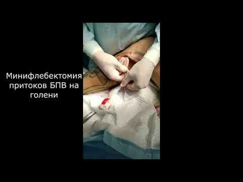 Удаление большой подкожной вены + минифлебектомия (Stripping GSV + miniflebectomia)
