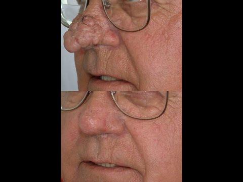Treatment Of Rhinophyma Swollen Rosacea Nose Youtube