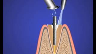 Реставр на штифте - стоматология - терапия(http://www.32dent.ru/ А сложность заключается в следующем. Если вы решились на довольно сложную операцию, нужно грамо..., 2015-09-05T18:28:45.000Z)
