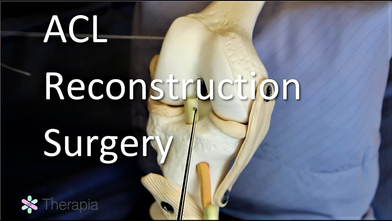 Download ACL Reconstruction Surgery