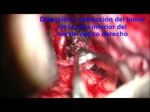 meningioma selar postRM