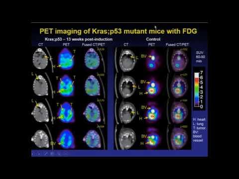 Novel PET Imaging in Oncology