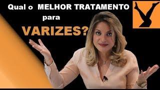 Varizes tratamento oral para