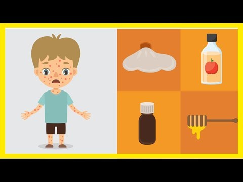 Natural Chicken Pox Treatment: 9 Home Remedies