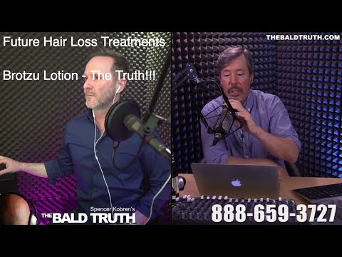 Spencer Kobren's The Bald Truth with Joe Tillman LIVE STREAM!