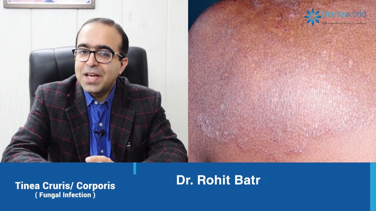 Watch this if you are suffering from Fungal Infection, Tinea Cruris  Corporis or Jock Itch