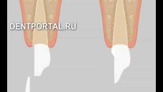 Зубные виниры - стоматология, лечение зубов(Зубные виниры - стоматология, лечение зубов., 2008-11-11T16:59:08.000Z)