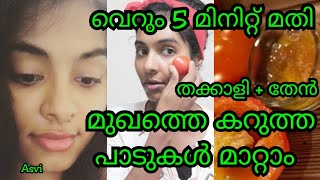 How to Remove black spots from face|100% natural 5 min Home remedy|Tomato&honey mask|Malayalam|Asvi