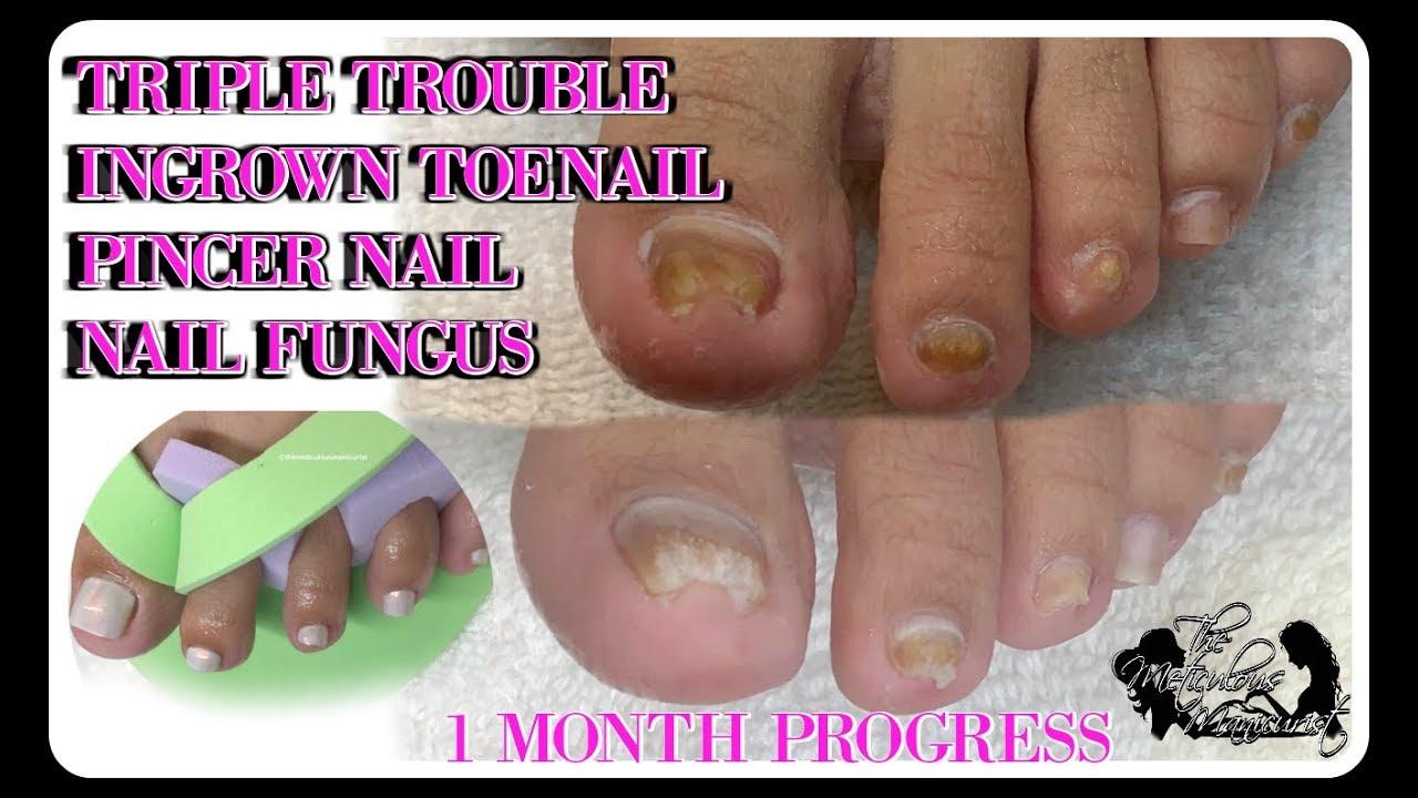 Pedicure Tutorial Ingrown Toenail Pincer Nail Toenail