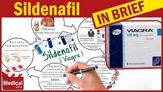 Sildenafil ( Viagra ) What is Sildenafil Used For, Dosage, Side Effects  Precautions?