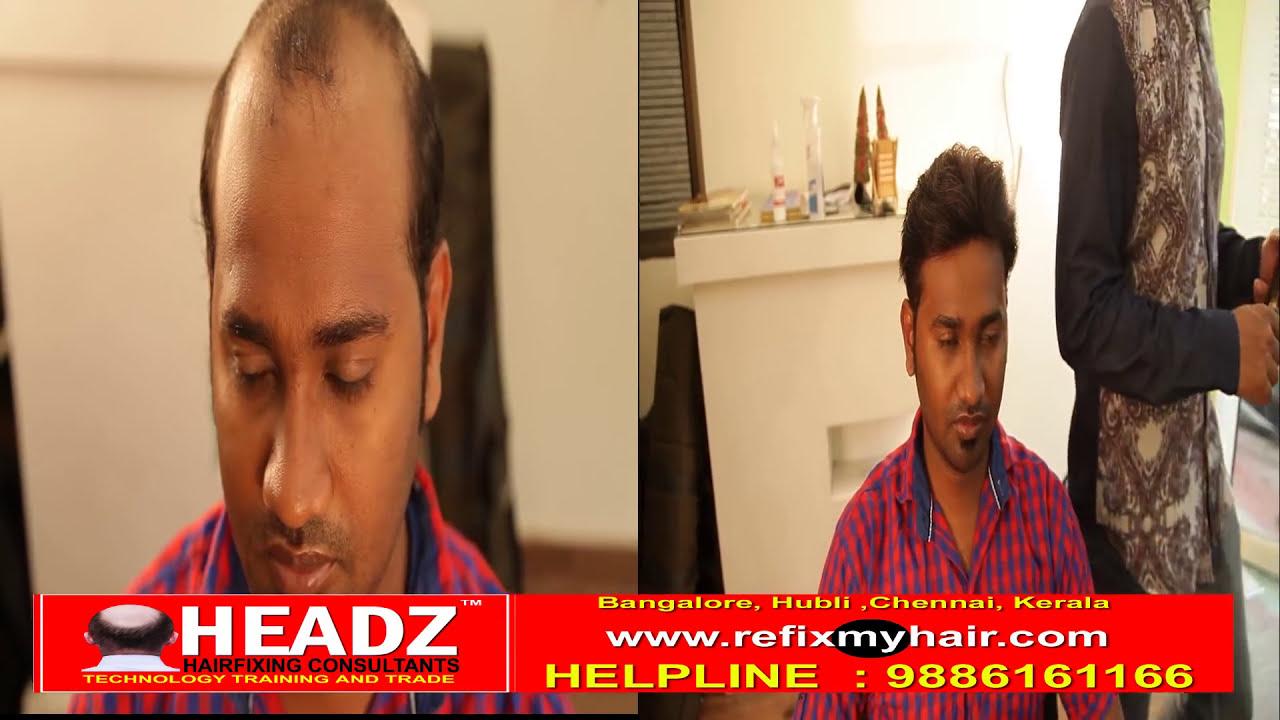 Natural Permanent Real Hair Fixing In Btm Bangalore 7204163166