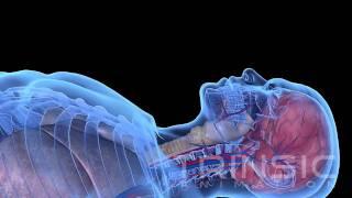 Liquid Ventilation Medical Animation