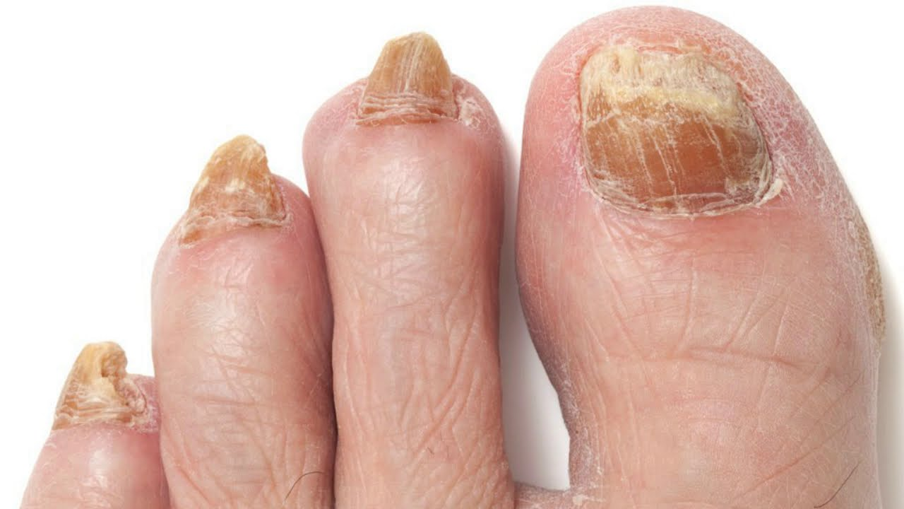 How to GET RID of YELLOW TOENAILS at home FAST!
