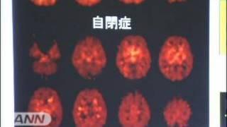 脳の先天的な機能障害とされる自閉症について、浜松医科大などの研究チ...
