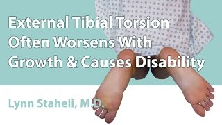 HELP : External Tibial Torsion Often Worsens With Growth & Causes Disability
