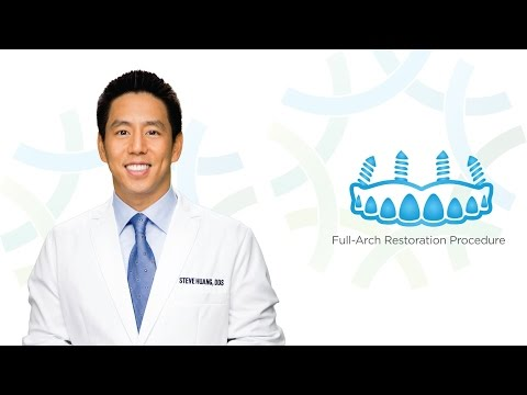 Full-Arch Restoration Procedure in Henderson NV | Henderson Oral Surgery & Dental Implant Center