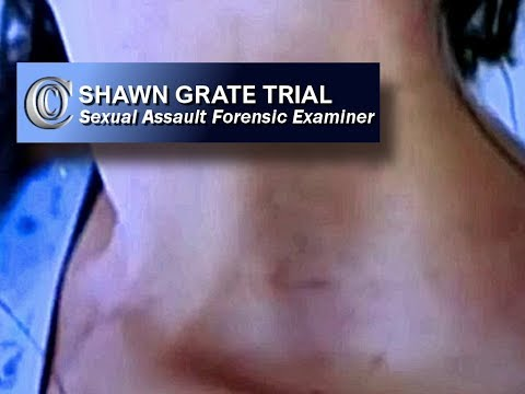 👩⚕️ SHAWN GRATE TRIAL -  Sexual Assault Forensic Examiner (S.A.F.E.) (2018)